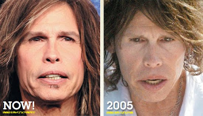 Steven Tyler Before After American Idol Plastic Surgery