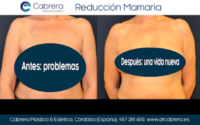 reducción mamaria sin dolor