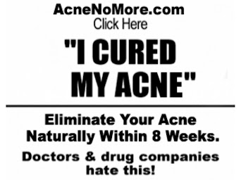 Cystic Acne Treatment Acne Bacteria And Also The Pimples Environment