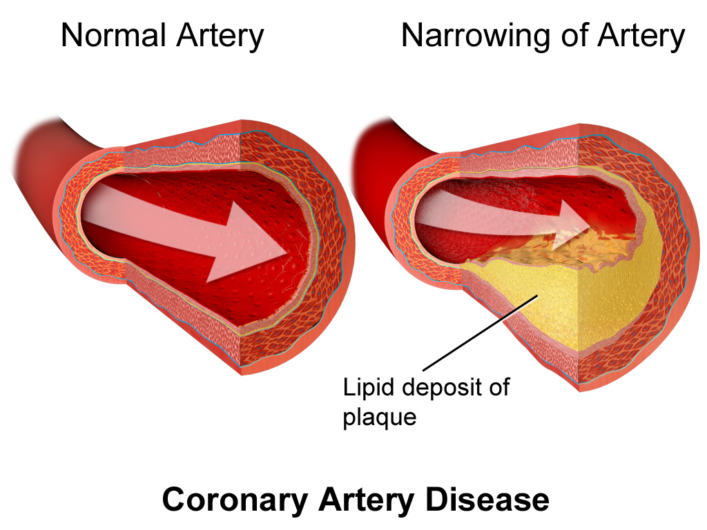 what can cause coronary heart disease
