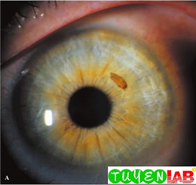 Wood chip is visible in the cornea on close inspection of the eye