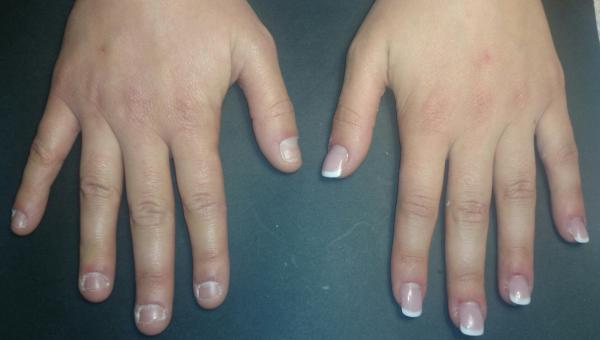 tips para no morder tus uñas
