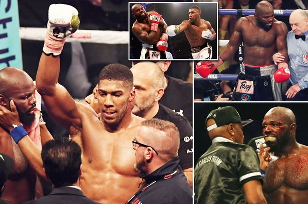 Anthony Joshua beats Carlos Takam to retain world heavyweight titles [Watch Video]