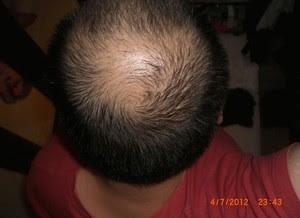 Pemakaian Minoxidil Pada Bulan Juli yang Ampuh Menumbuhkan Rambut Botak
