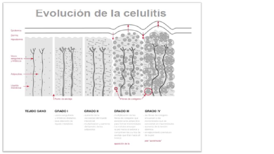 tipos de celulitis y su clasificacion