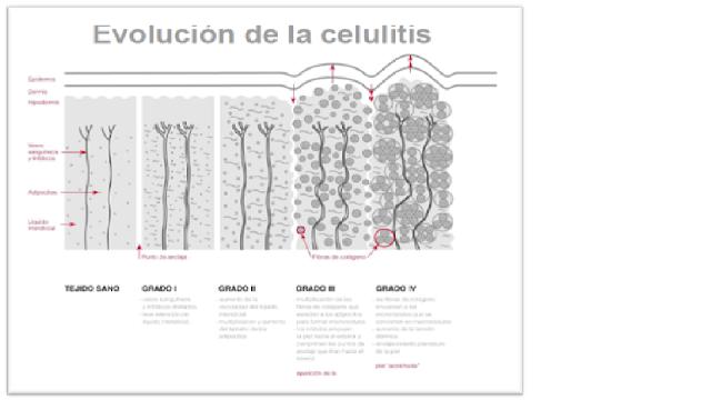 los diferentes tipos de celulitis