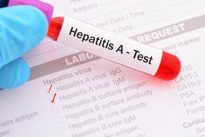 Cara Menyembuhkan Hepatitis A Secara Tradisional