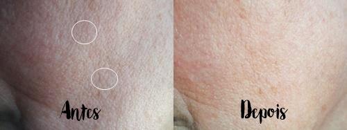 Dicas de produtos para peles secas