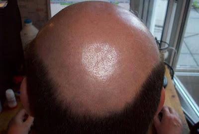 Menumbuhkan Rambut Botak