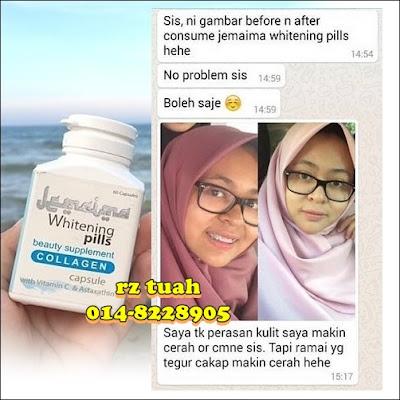 jemaima whitening pills testimoni