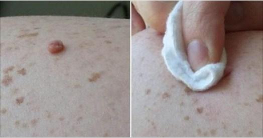 Como eliminar las verrugas