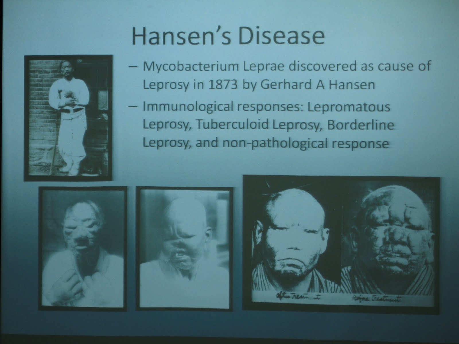 Leprosy or Hansens Disease: Bacteria and Nerve Damage