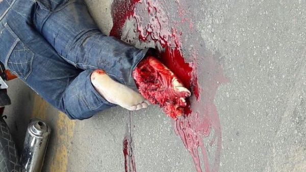 Grave acidente na BR 364 deixa motociclista com o pé dilacerado