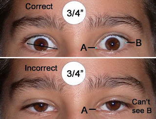 titik lateral pada mata