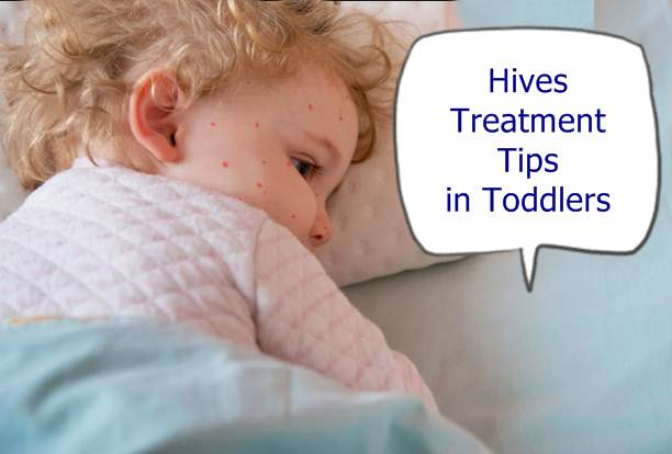 what causes hives in children