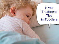 Hives Treatment Tips in Toddlers