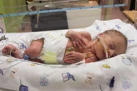 Perkembangan Bayi Yang Lahir Berat Badan Lahir Rendah (BBLR)