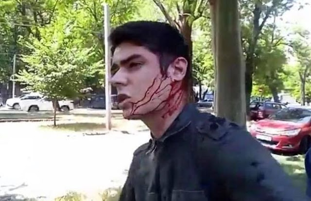 В Одесі невідомі намагалися вбити ножем члена Ради громадського контролю НАБУ