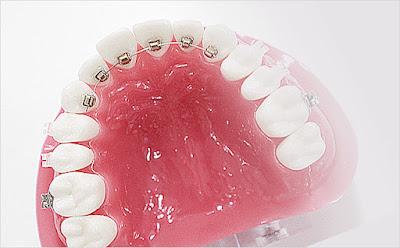 Nha khoa Đăng Lưu thực hiện niềng răng bên trong hiệu quả