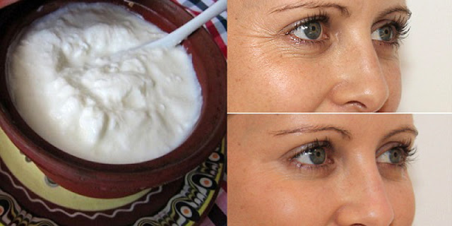 It is called miracle cream removes stains and wrinkles from your face results from the first application