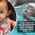 Bayi mengalami pendarahan dalam otak selepas terjatuh dari buaian