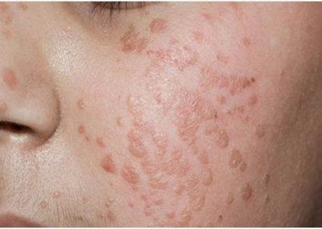 warts on the face how to remove