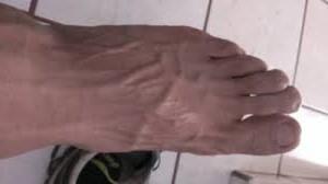 como desinflamar las venas del pie