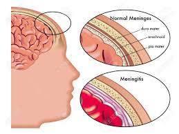what is stiff neck in meningitis