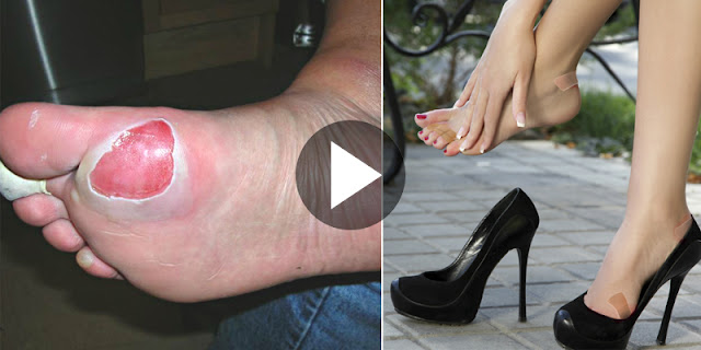 How To Treat Feet Blisters At Home - Check Out Natural Remedy!