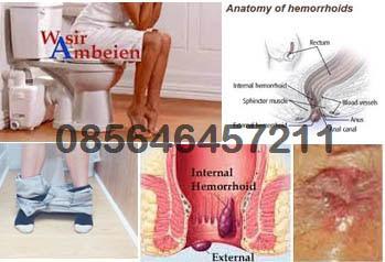 Obat Herbal Ambejoss dan Hemoroid (Wasir)