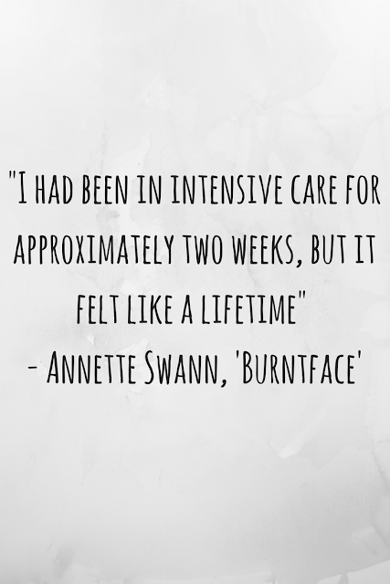 Review of 'Burntface: Scarred for Life' by Annette Swann