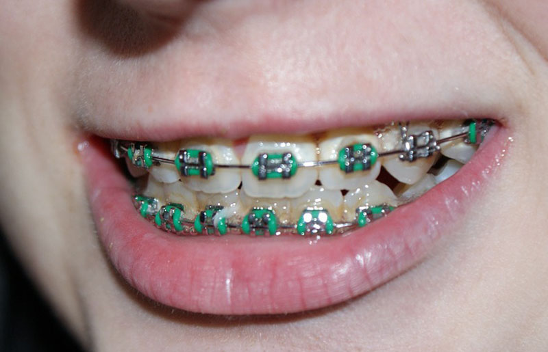 7 Tips Cara Merawat Gigi Bagi Pengguna Kawat Gigi (Behel) Agar Tetap Bersih  dan 6869d5dd18