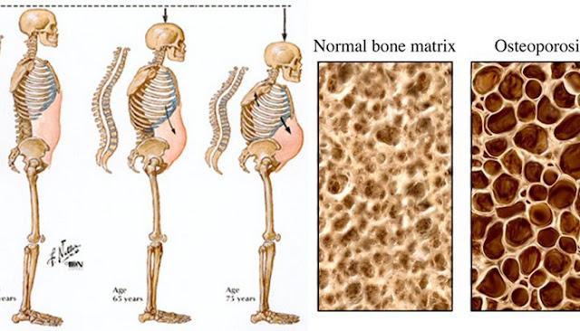 what is osteoporosis arthritis