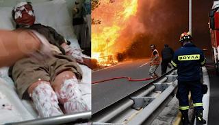 Φωτογραφίες σοκ: Τουλάχιστον 25 άτομα στο νοσοκομείο - Οι 6 διασωληνωμένοι σε ΜΕΘ