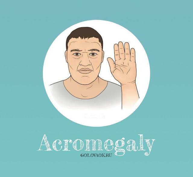 как изменяется внешность при акромегалии