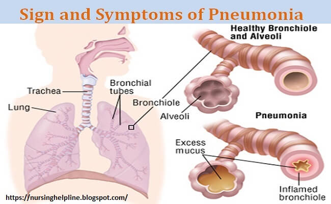 Pneumonia disease symptoms