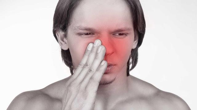 bahaya-penyakit-sinusitis