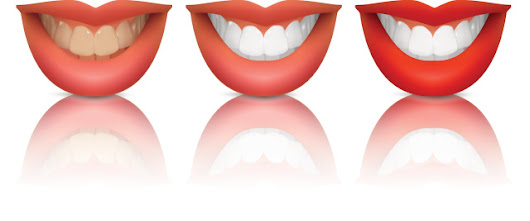 How a Cosmetic Dentist Can Help you Improve Your Tooth Appearance