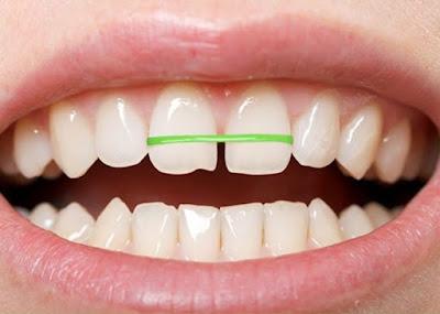 Liệu dụng cụ niềng răng tại nhà có tốt như bạn nghĩ?