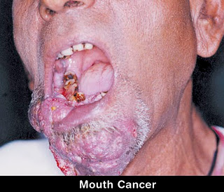 can oral sex cause oral cancer