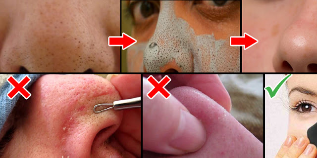 How To Remove Blackheads Within A 2 Minutes - See 5 Effective Tips!