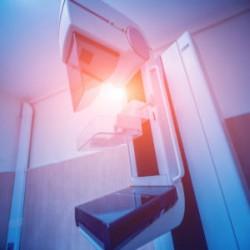 Mamografias de triagem: uma recomendação pode não se adequar a todos