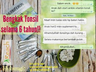 sakit tonsil