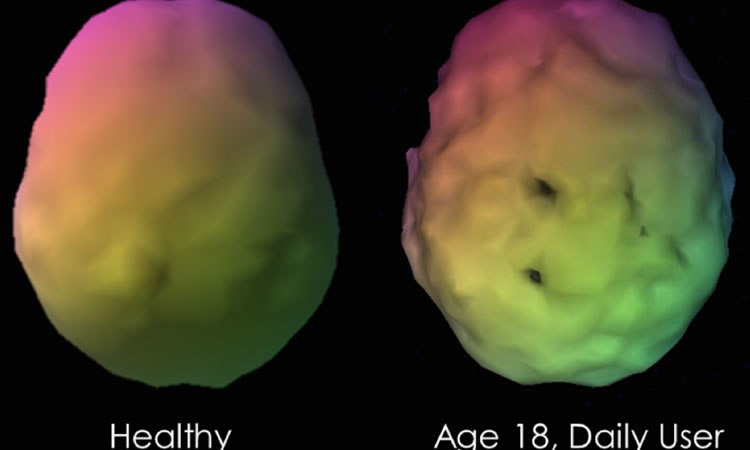 IMAGE LEGEND: Example of a volume rendered brain SPECT image (top down  view) of a healthy control compared to an 18-year old daily user of  marijuana.