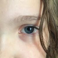 l'oeil gauche grave