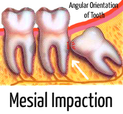 infected wisdom tooth pictures (mesial impaction)