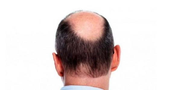 Obat Penumbuh Rambut Botak, Penumbuh Rambut, Penumbuh Rambut Botak, Rambut Botak, Obat Rambut Botak, Obat Rambut,