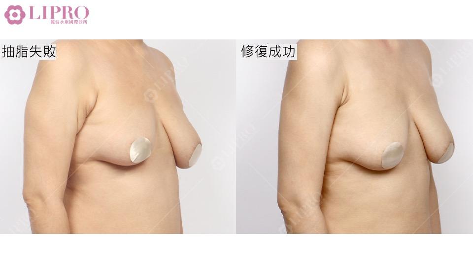 背部抽脂 背部抽脂失敗 抽脂重修 抽脂修復