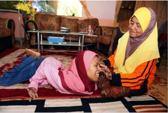 Tamparan Bagi Kita Yang Tidak Besyukur, Cacat Fisik Tak Menghalangi Wanita Ini Untuk Sukses