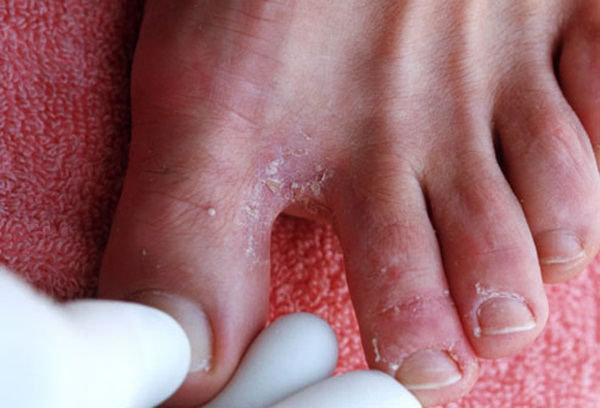 Healthy and Beauty Tips: Athletes Foot Treatment